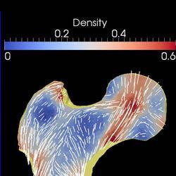 Trabecular bone (by Dieter H. Pahr)