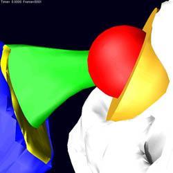 Hip prosthesis (by Alberto Audenino)